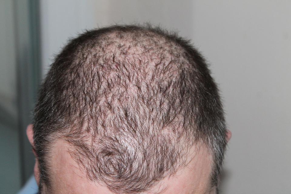 behandling af hårtab